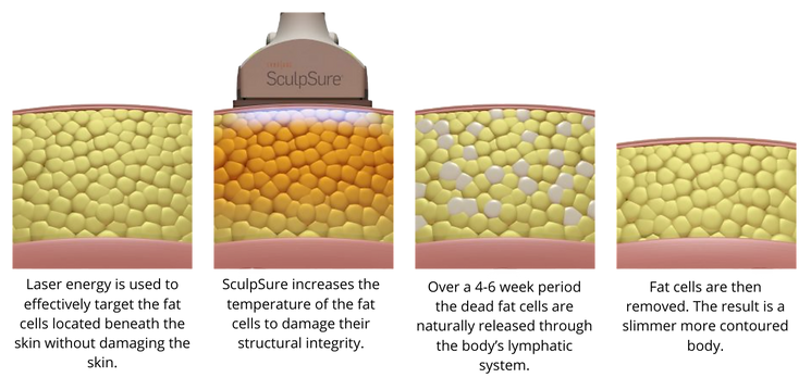 how it works sculpSure.png
