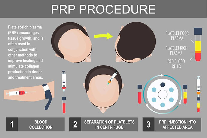 male Hair loss prp infographic.jpeg