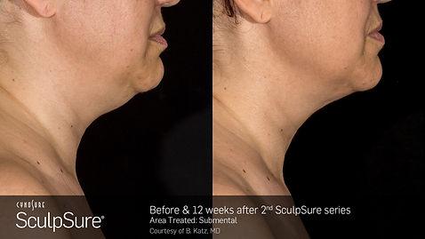 ScuplSure under chin.jpg