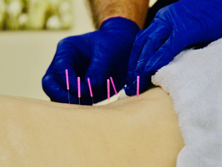 What Is Dry Needling & Why Should I Consider It For Pain Management?