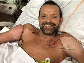 Medical Marvel: Icelandic man recovers from double arm and shoulder transplant
