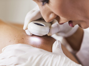 New portable device opens the way for at-home skin cancer treatment