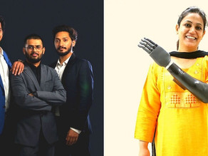 Indian Startup Builds Lightweight Bionic Hand At 1/10 The Cost