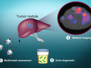 Researchers devise a noninvasive test to detect cancer cells and pinpoint their location