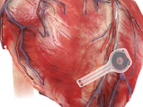 First-ever transient pacemaker harmlessly dissolves in body