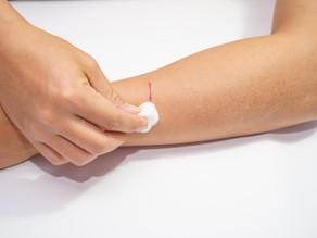 MIT develops a bio-inspired tissue glue that seals bleeding wounds in seconds