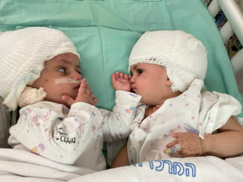 'Unbelievable joy': Newly separated conjoined twins see each other for the first time
