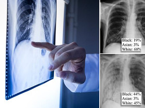 AI predicts patient's race from x-ray images with 99% accuracy - is that as good thing?