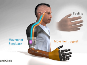 Researchers develop bionic arm that restores natural touch and grip control