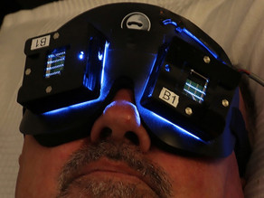 Can a novel light therapy help people with Alzheimers?