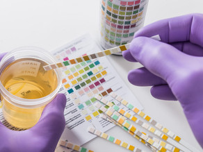 Simple urine test may help early detection of brain tumors