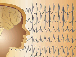 Music is good for the soul and for treating medication-resistant epilepsy