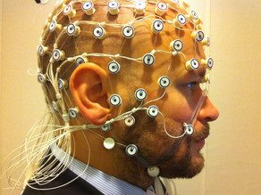 In the face of neurotechnology advances, Chile passes 'neuro rights' law