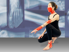 New light-weight and comfortable casts self-adjust during the healing process