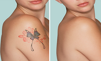 Natural-Tattoo-Removal_clickable_icon_1_