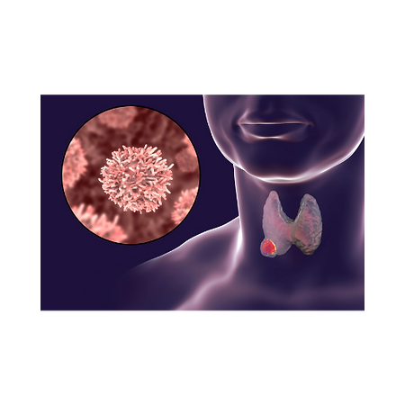 câncer de tireóide em manaus, cirurgião de cabeça e pescoço em manaus, cirurgião geral em manaus, dr marcio costa fernandes
