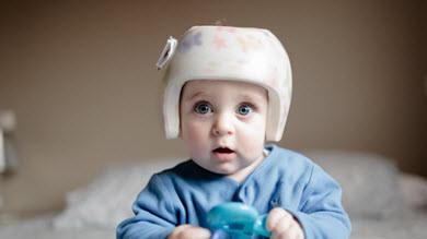 Syndrome de la tête plate et Ostéopathie