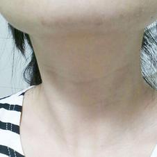 Морщины на шее улучшились