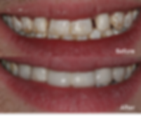 Bonding results before and after-improved color and shape of teeth