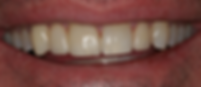 Front tooth missing replaced by cosmetic bridge