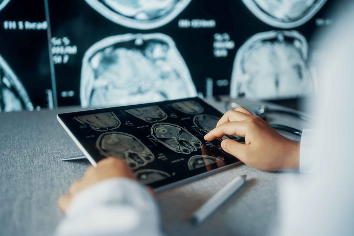 Images of brain scans on tablet