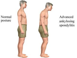 Ankylosing Spondylitis - Bodywork & Massage Therapy