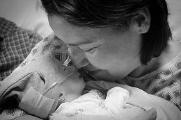 Trisomy 18, infant loss
