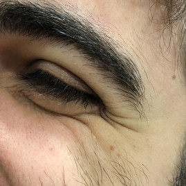 Male 29 years