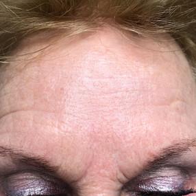 Female 65 years