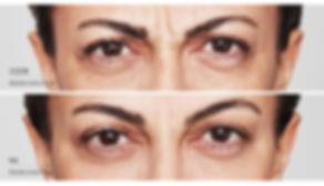Voor en na behandeling botox frons.jpg