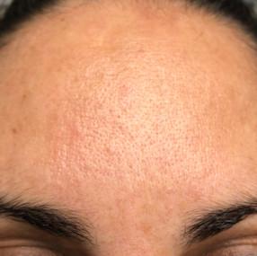 Female 39 years