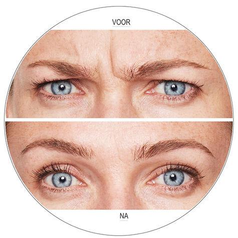 Botox fronslijnen voor en na