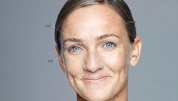 Botox behandeling op maat door Dokter Marsha Wichers