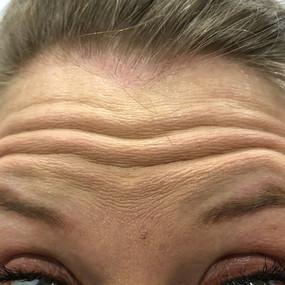 Female 31 years