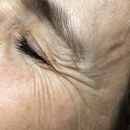 Female 49 years