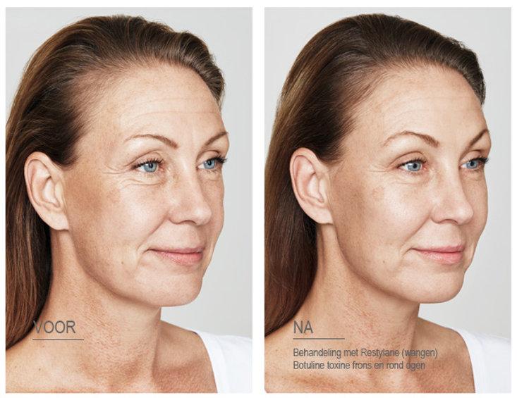 Restylane wangen en botox behandeling door Dokter Marsha Wichers