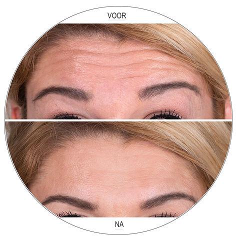 Botox voorhoofdslijen voor en na Dokter Marsha Wichers