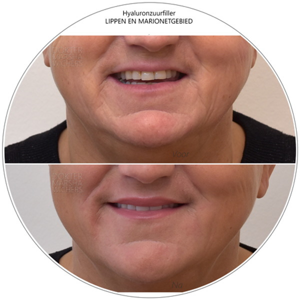 Hyaluronzuurfiller rond mond dokter Marsha Wichers