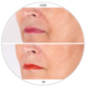 Restylane lijnen mondhoeken nasolabiaal