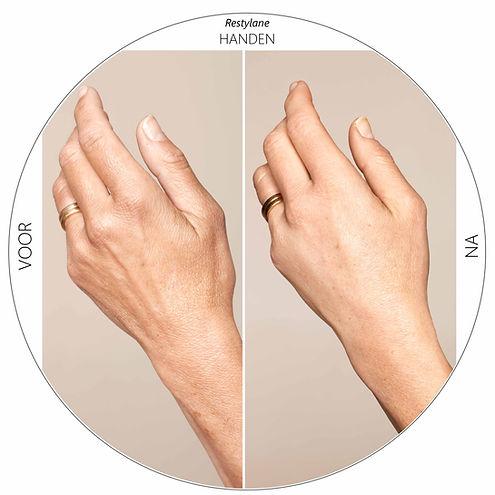 Hyaluronzuurfiller voor handen Dokter Ma