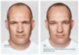 Voor en na botox en restylane.jpg