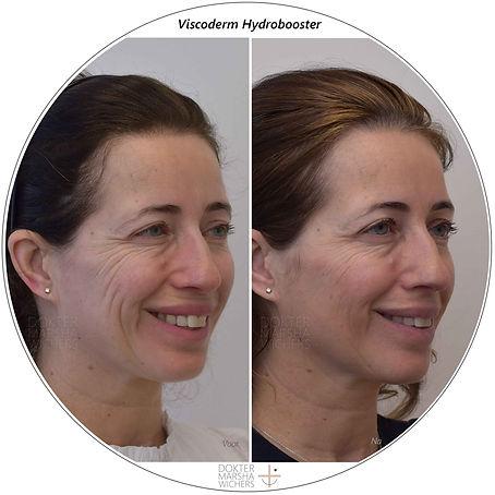 Voor en na Viscoderm Dokter Marsha Wiche