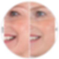 Voor en na van een Filler behandeling Marsha Wichers