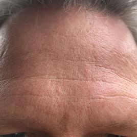 Male 49 years