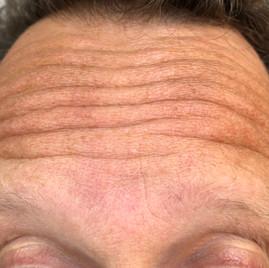Male 47 years
