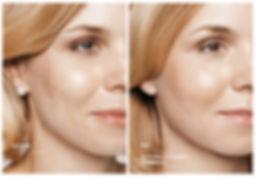 Voor en na Restylane behandeling van acn