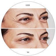 Voor en na van een Botox behandeling Marsha Wichers
