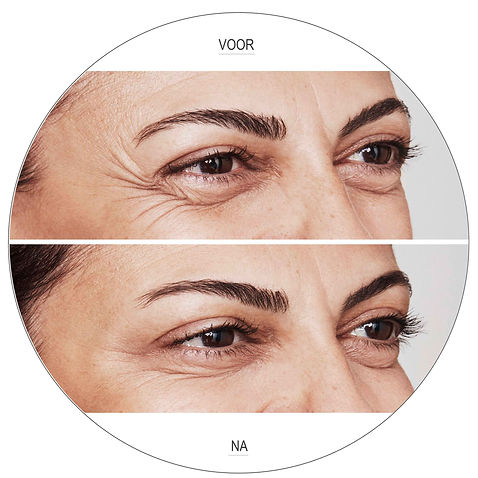 Botox kraaienpootjes voor en na