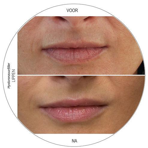 hyaluronzuurfiller lippen dokter marsha