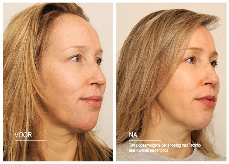Voor en na profhilo behandeling door Dokter Marsha Wichers